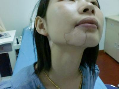 国丹白癜风:女性治疗白癜风的费用